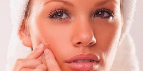 Modelo con acne